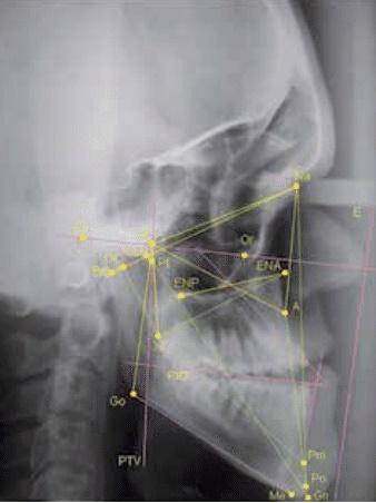 Colaboração em estudo dentário na acondroplasia